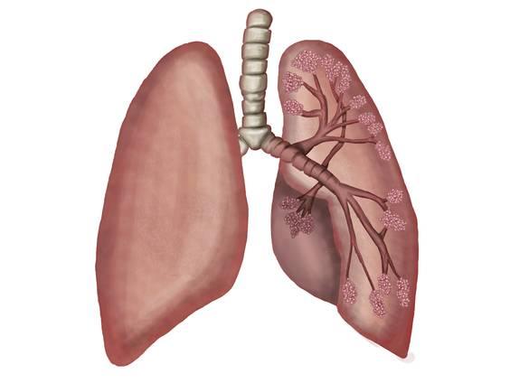 Rauchen – ein gefährlicher Genuss (Übungen & Arbeitsblätter)