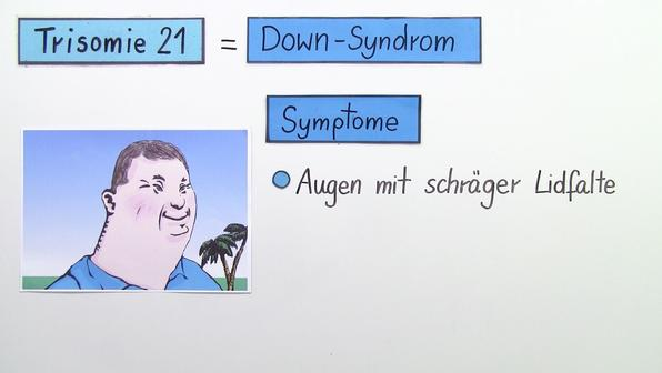 Trisomie 21 – Down-Syndrom