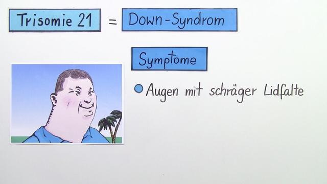Trisomie 21 – Erbkrankheit Down-Syndrom