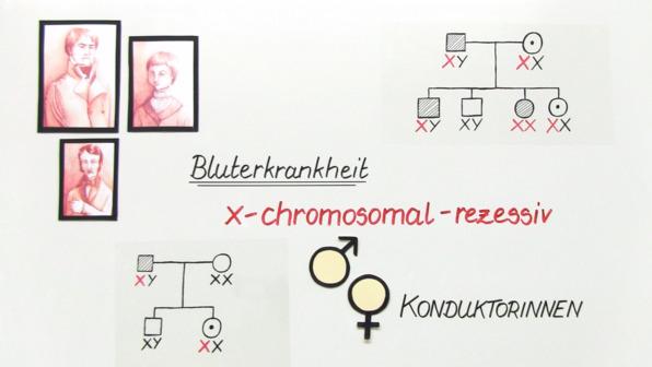 Stammbaumanalyse eines gonosomalen Erbgangs - Bluterkrankheit