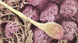 Befruchtung beim Menschen – Spermium trifft Eizelle