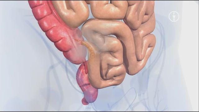 Verdauung beim Menschen: Der Dickdarm – Biologie online lernen